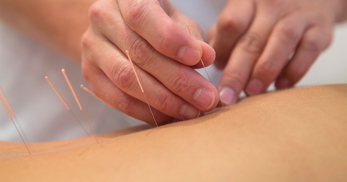 Acupuncture needles being inserted into skin